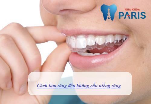 đâu là cách làm răng đều không cần niềng răng