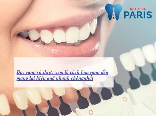 đâu là cách làm răng đều không cần niềng răng1