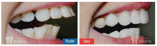Bọc răng sứ có hết hô không là mối quan tâm của nhiều người