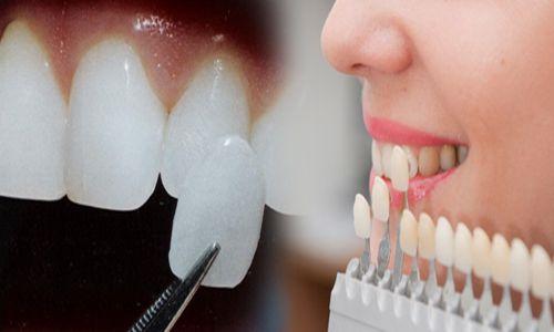 Đặc tính ưu việt của dán răng sứ thẩm mỹ