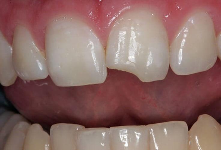 Bọc răng sứ cho răng cửa bằng chất liệu nào là tốt nhất? 1