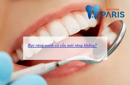 Bọc răng nanh có mài răng không