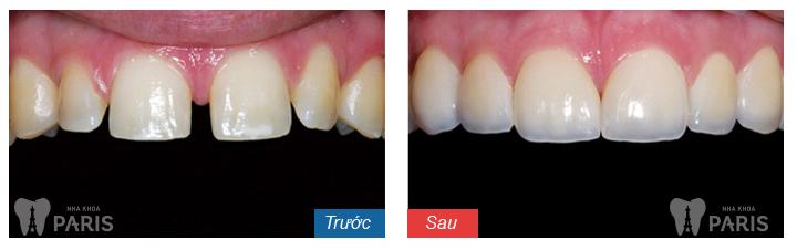 Bọc sứ răng thưa – Phương pháp phục HOÀN HẢO nhất!