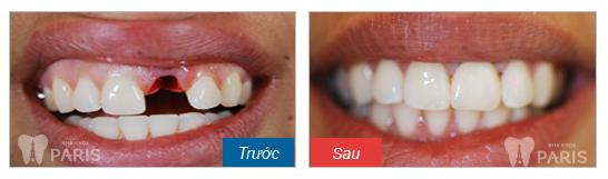 Có nên làm cầu răng sứ cho răng cửa đã mất?