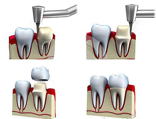 Sai phạm có thể gặp trong quá trình bọc răng sứ 2