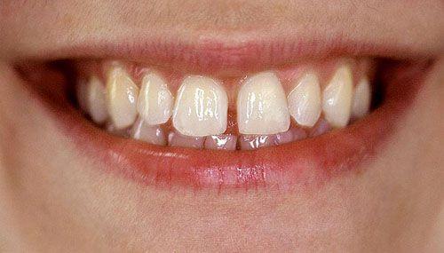 Khắc phục hai răng cửa bị hở bằng cách nào là tốt nhất? 1