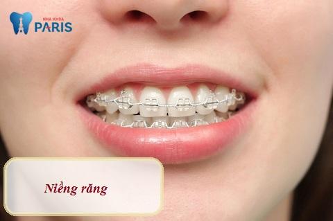 Niềng răng cửa to và hô có chi phí cao, thời gian điều trị lâu dài