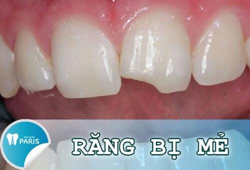 Làm gì khi bị mẻ răng? Đánh giá hiệu quả của từng phương pháp 1