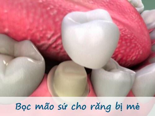 Làm gì khi bị mẻ răng? Đánh giá hiệu quả của từng phương pháp 2