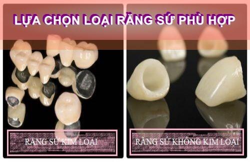 T0P 3 kinh nghiệm chụp răng sứ thẩm HỮU ÍCH cho bất kì ai 2