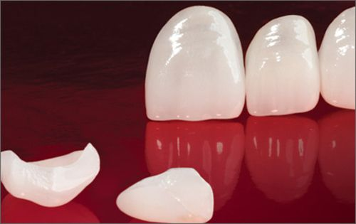 Được và mất khi Bọc răng sứ Zirconia là gì? 1