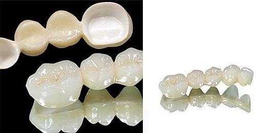 Bọc răng sứ titan - Giải pháp thẩm mỹ răng BỀN - ĐẸP - TIẾT KIỆM nhất 3