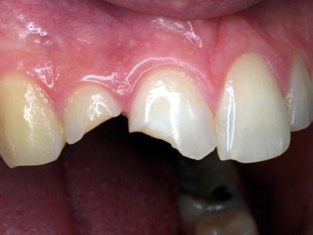 Cách phục hồi răng cửa bị mẻ HIỆU QUẢ tiết kiệm chi phí nhất 1