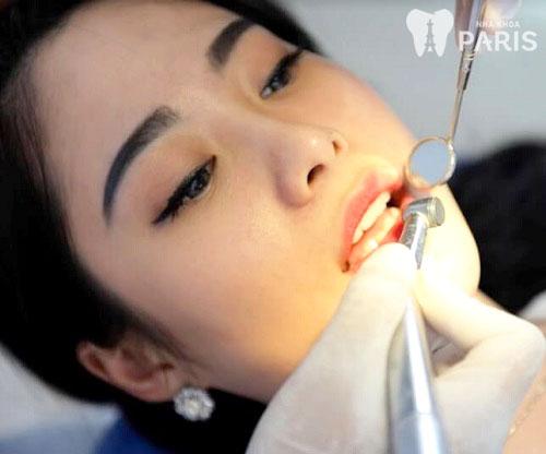 Răng bị nứt phải làm sao 2