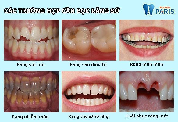 Bọc răng sứ không kim loại ĐẸP TỰ NHIÊN - BỀN CHẮC gấp 7 LẦN 2