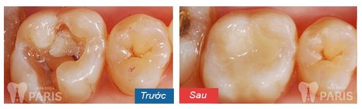 Răng sứ không kim loại - Đỉnh cao của công nghệ bọc răng sứ hiện nay 11