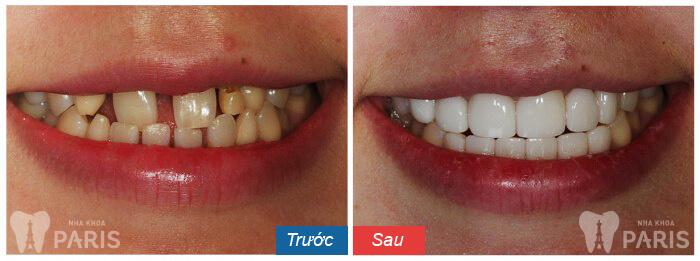 Bọc sứ răng thưa liệu có TỐT hay KHÔNG? Nha khoa Paris 2