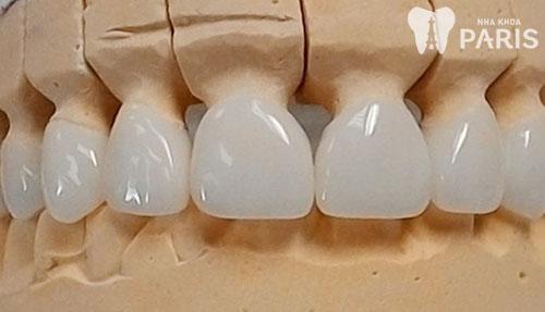 Bọc răng sứ được bao lâu 2