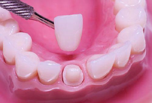 Bọc răng sứ có đau không 234