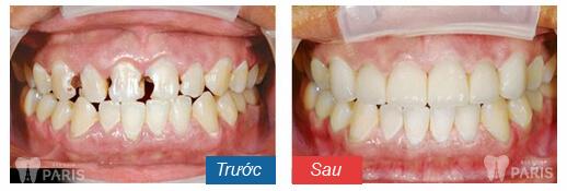 Răng mẻ phải làm sao 5