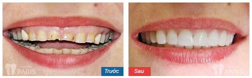 Răng sứ không kim loại - Đỉnh cao của công nghệ bọc răng sứ hiện nay 14