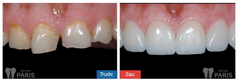 Nguyên nhân và cách điều trị mòn men răng HIỆU QUẢ nhất 2
