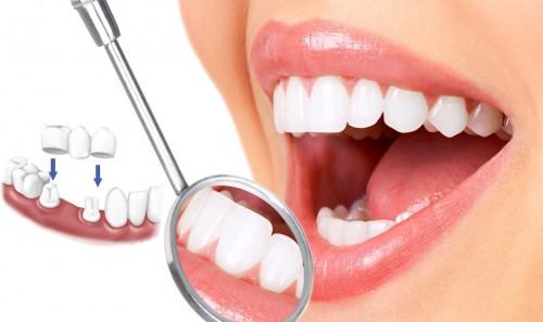 Hậu quả của bọc răng sứ 1