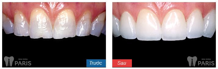 Bọc răng sứ venus giá bao nhiêu tiền,độ bền được bao lâu? 2