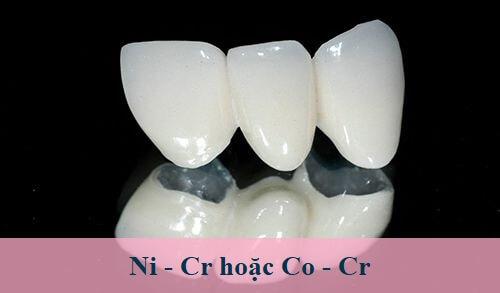 Thông tin từ A - Z về răng sứ kim loại thường 1