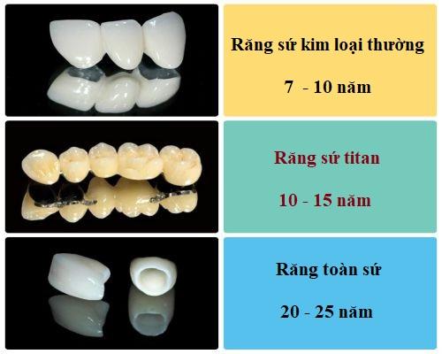 Thông tin từ A - Z về răng sứ kim loại thường 2