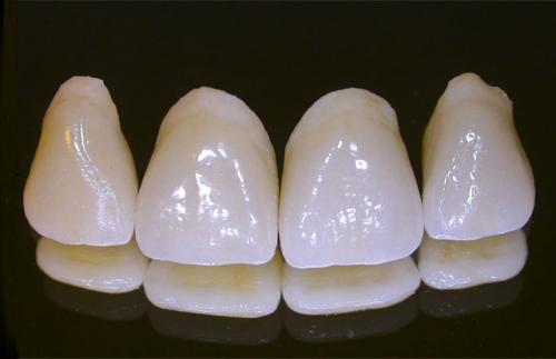 Cách làm răng đều đẹp tự nhiên CỰC NHANH CHÓNG!! 2