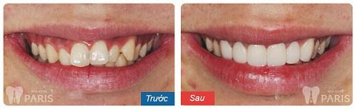 Điều trị răng mọc lệch và khấp khểnh 1