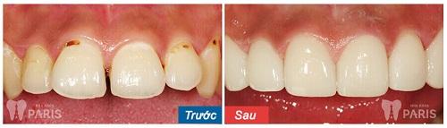 Răng sứ đổi màu sau khi phục hình