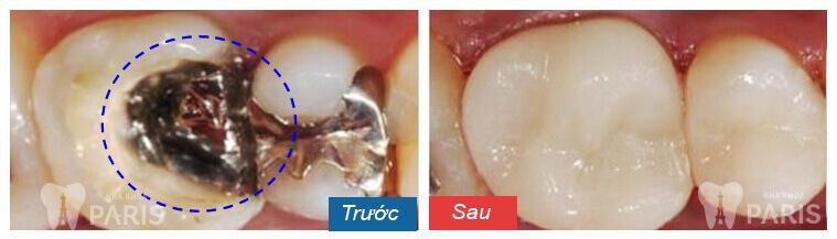 Cách khắc phục răng bị sâu nặng và vỡ lớn HIỆU QUẢ nhất là gì? 3