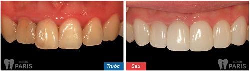 Bọc sứ 4 răng cửa có được không? Nên chọn loại PHÙ HỢP nhất 4