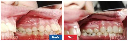 Cách chỉnh 2 răng cửa bị vẩu đều đẹp nhanh và hiệu quả nhất 2