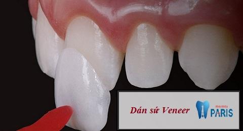 Mặt dán sứ Veneer - Biện pháp an toàn khắc phục tình trạng răng lệch nhẹ