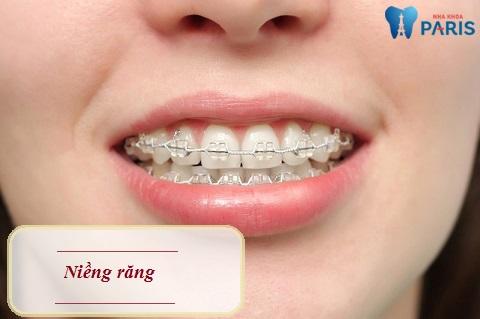 Niềng răng - Giải pháp chỉnh răng lệch lạc hiệu quả