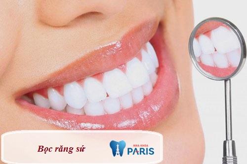 Bọc răng sứ - Giải páp hữu hiệu khắc phục răng lệch lạc nhẹ