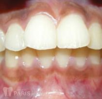 Bọc răng sứ cho răng bị hô móm