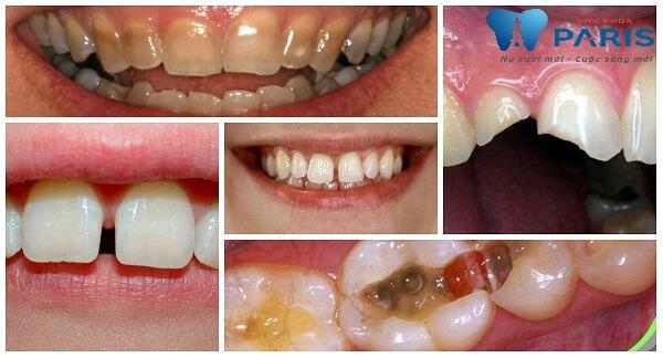 bọc răng sứ lợi và hại 1