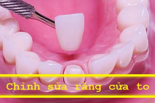 Tìm hiểu về phương pháp chỉnh sửa răng cửa to hiệu quả nhất 1