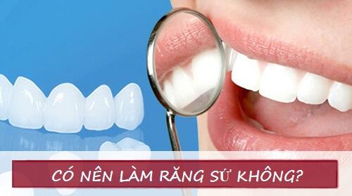 Giải đáp thắc mắc: Có nên làm răng sứ không? 1