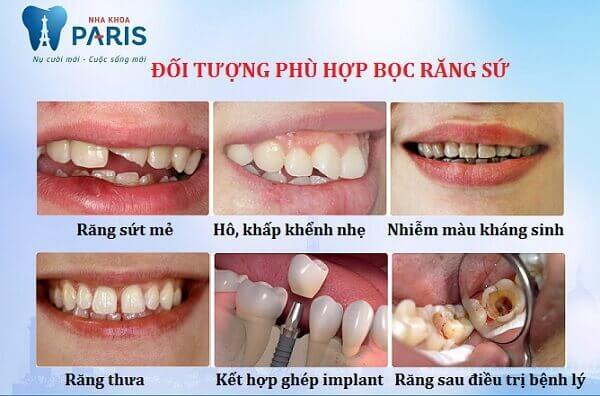 Giải đáp thắc mắc: Có nên làm răng sứ không? 2