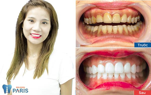 Giải đáp thắc mắc: Có nên làm răng sứ không? 5