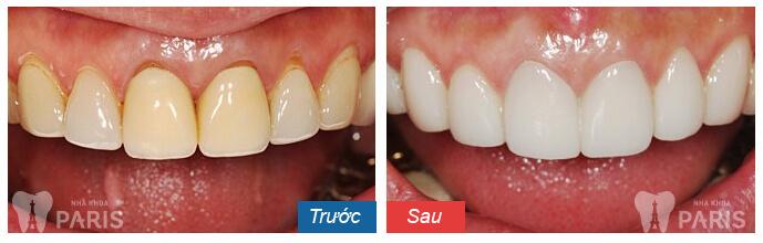 Giá làm răng sứ Veneer 3