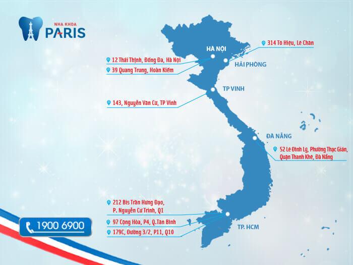 Hệ thống chuỗi Nha khoa Paris trải rộng trên mọi miền đất nước
