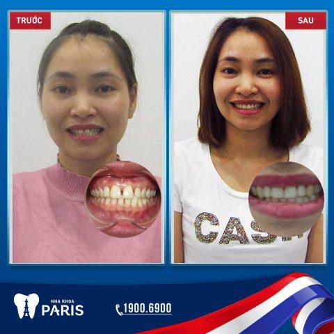 Khách hàng niềng răng thành công tại Nha khoa Paris