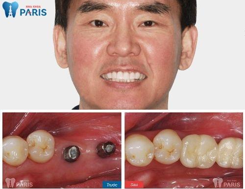 Khách hàng sử dụng dịch vụ cấy ghép răng Implant 4S