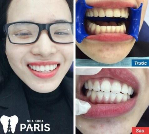 Nụ cười thay đổi sau khi tẩy trắng răng